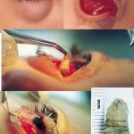Picture about: Doctors Find Live Worm in Patient's Eye