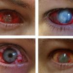 Picture about Contact Lens are made of Plastic - Melting can make you Blind